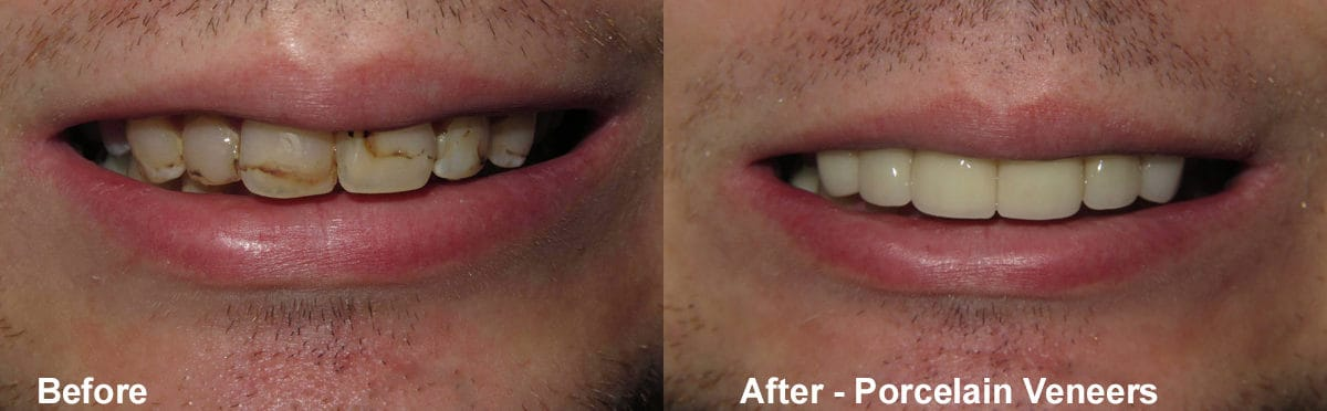 dental before and after - Broberg & Tieken Dental - Austin, TX